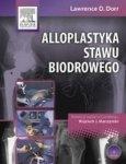 Alloplastyka stawu biodrowego /Elsevier