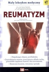 Mały leksykon medyczny. Reumatyzm. Fakt poradnik 2/2015