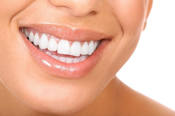 IDOL WHITE - alternatywa kosztownych zabiegów wybielających zęby - 1 APLIKATOR