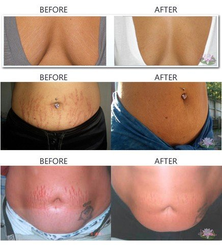 Revitol Stretch Mark - krem na rozstępy