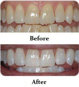 Idol White - Kim Kardashian Teeth Whitening
