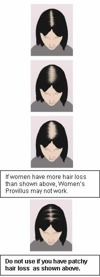 PROVILLUS FOR WOMEN SPRAY 60ml - wypadanie włosów łysienie dla kobiet